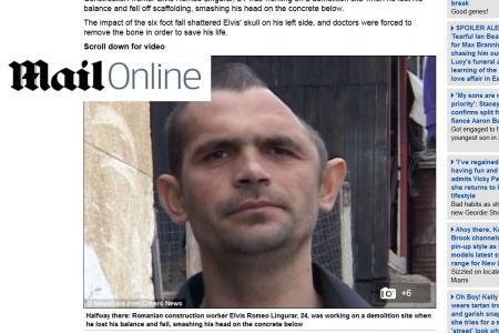 Vivant avec une moitié de crâne, il lance un appel aux dons
