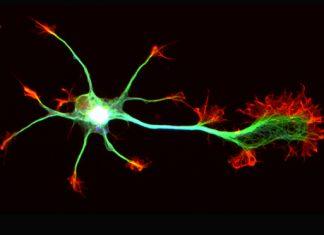 La huntingtine sauve les neurones déficients (étude)